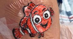 Dr. Parry Nemo bandage